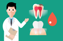 Caries Process and Prevention Strategies: Intervention